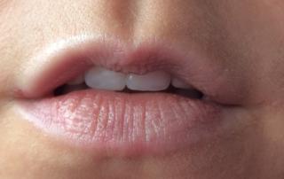Offene Mundhaltung